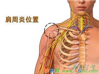 肩周炎如何治疗 5个肩周炎的治疗方法