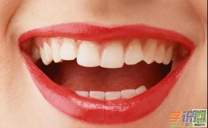 女人梦见掉牙齿有什么意思